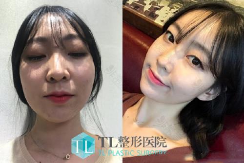 韩国TL整形外科自体脂肪填充全脸案例