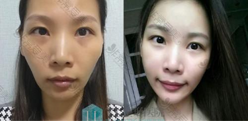 韩国TL整形医院面部脂肪填充前后对比照