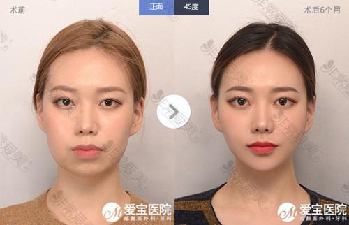 韩国爱宝整形外科面部轮廓案例