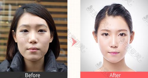 韩国NJH整形外科轮廓整形案例