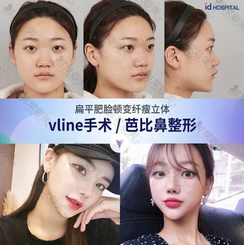 韩国ID医院Vline手术案例对比