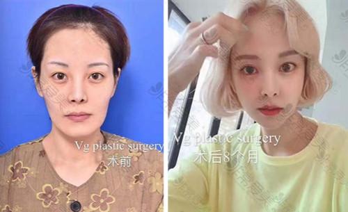 韩国VG百利酷整形外科轮廓手术案例