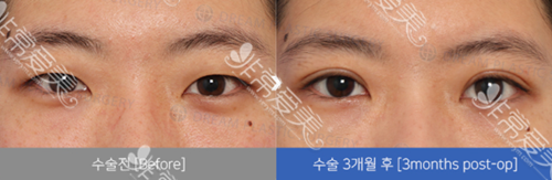 韩国dream整形外科眼部案例