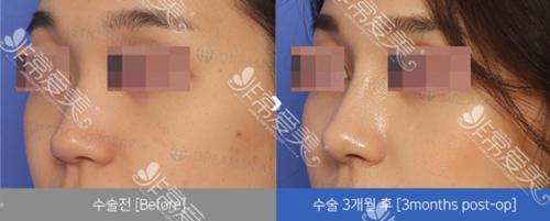 韩国dream整形外科鼻部案例