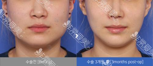 韩国dream整形外科轮廓案例