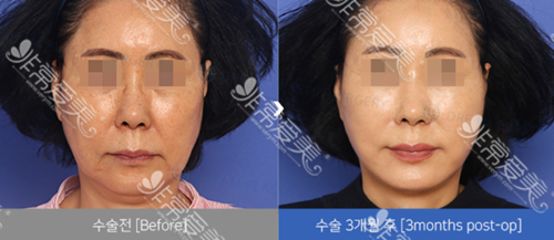 韩国dream整形外科抗衰案例