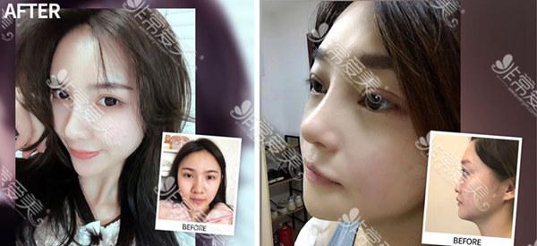 韩国女神整形医院鼻整形案例