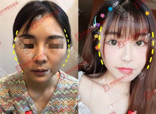 韩国女神整形医院颧骨手术效果好吗