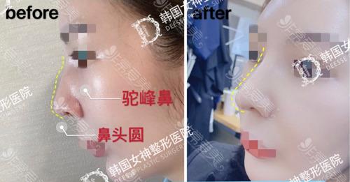 女神医院驼峰鼻矫正前后图片