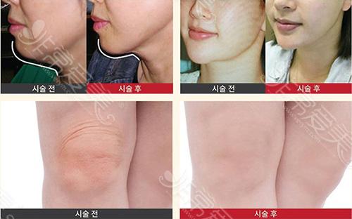 韩国爱丽美女性医院吸脂手术案例