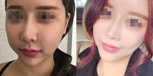 韩国芙莱思脂肪填充修复案例