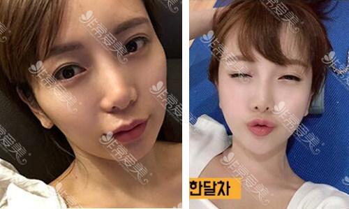 韩国美迪莹颧骨手术效果好吗
