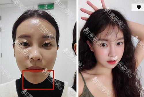 韩国美迪莹整形官网下巴眼部整形效果图