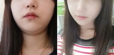 面部吸脂前后对比效果