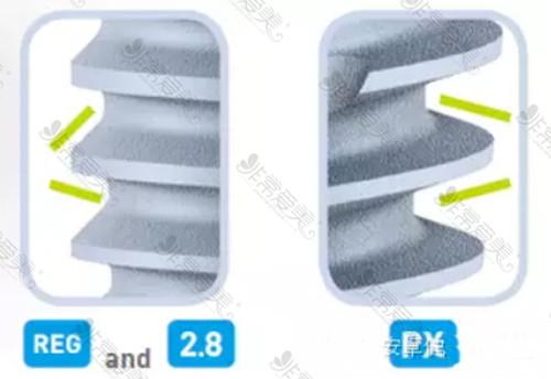 法国安卓健种植体螺纹设计有哪些优势