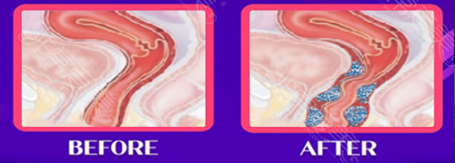 阴道整形前后对比图