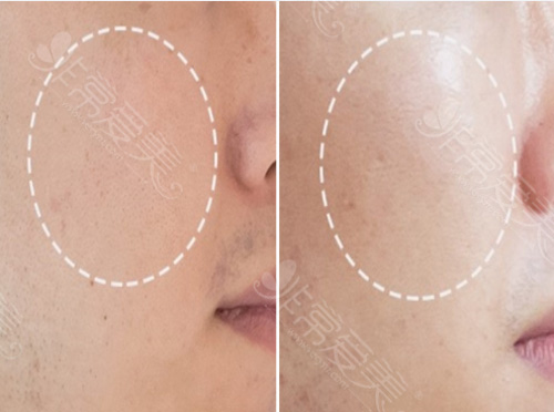 丽菲尔特(lifilltox)整形医院皮肤项目对比图