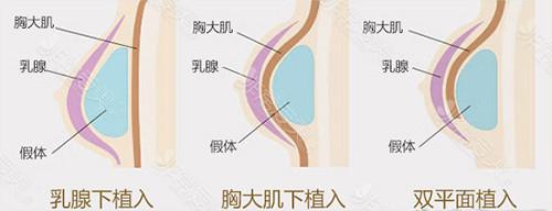 假体隆胸位置