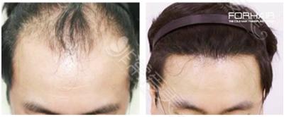 韩国毛发移植前后对比照片