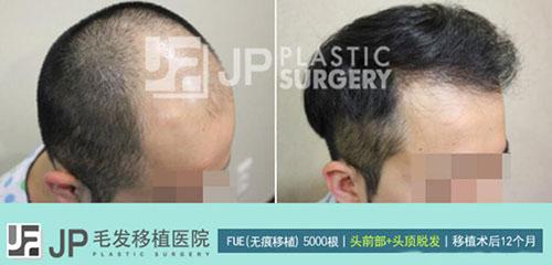 韩国毛发种植前后对比照片