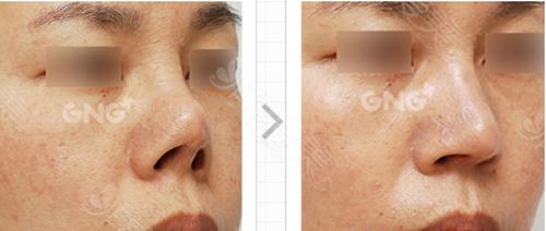 鼻整形前后对比案例图