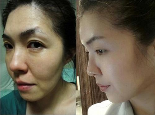 面部填充手术案例