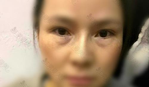 韩国超声去眼袋效果怎么样?轻松不开刀无惧疤痕风险!