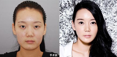 隆鼻手术对比案例