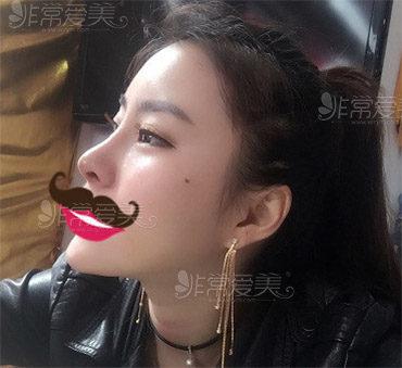 隆鼻后想要马上修复可以吗 韩国医院通常建议使用什么材料?