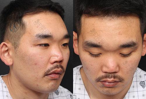 鼻子修复韩国哪家医院好?真实经历车祸鼻塌陷三次修复全程!