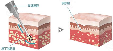 面吸后1周效果直接上图,粘连凹陷和疤痕存留统统说再见!
