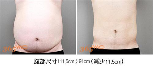 腹部吸脂案例图