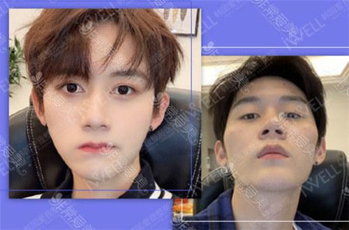韓國男士顴骨磨骨手術費多少