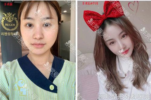 韓國麗珍整形外科磨顴骨手術費價格多少