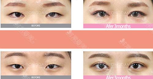 双眼皮手术和眼睑下垂手术能一起做吗?