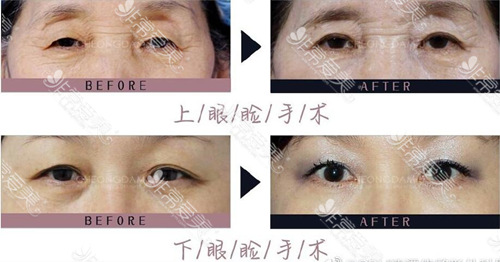 韩国cdu清潭优整形医院眼睑下垂修复案例