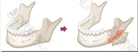 下颌角劈外板示意图