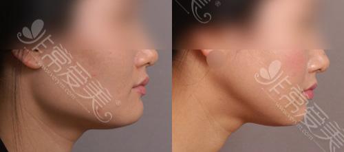 下颌角手术侧面前后对比