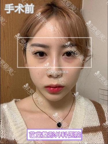 韩国芭堂整形医院眼底脂肪重新排列术前图片