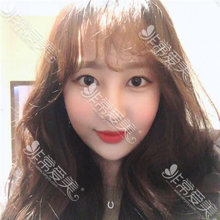 韩国原辰整形医院外眼角下拉手术后一个月图片
