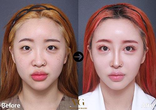 韩国VG百利酷眼综合整形前后对比照片