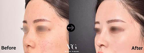韩国VG百利酷鼻部矫正前后对比照片
