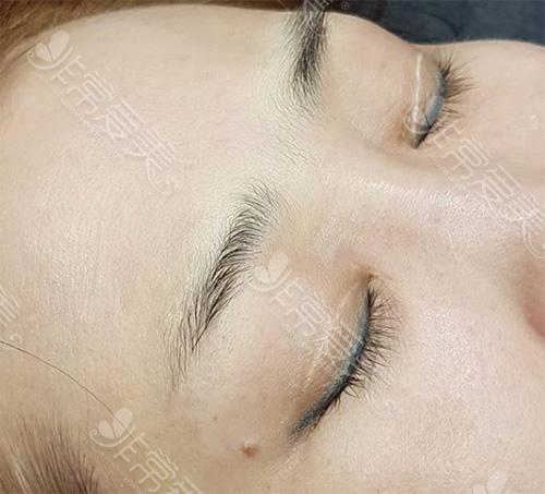双眼皮术后痕迹过重