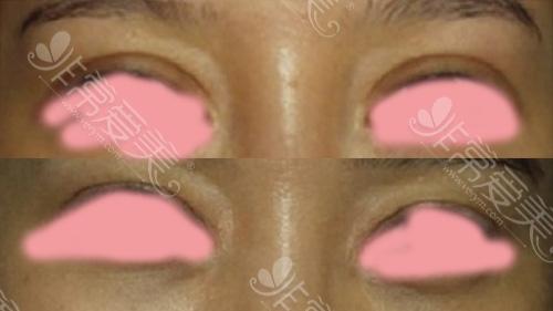 双眼皮修复前后对比