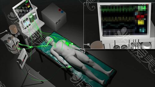 手术中使用的监控设备