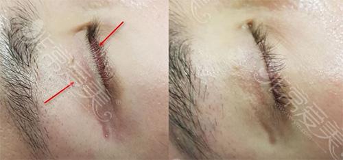 双眼皮术后疤痕明显修复
