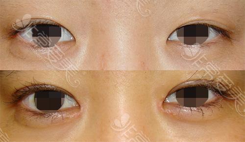 双眼皮不对称修复后效果