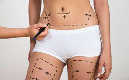 吸脂手术方法有几种