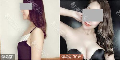 宁波整形外科医院隆胸前后对比照片清晰