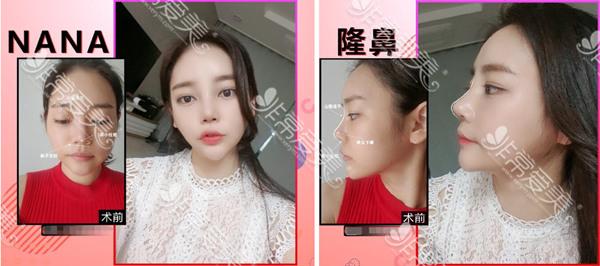韩国nana整形外科真人隆鼻案例